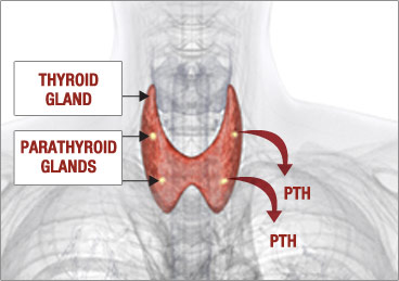 Unhealthy Parathyroid Glands